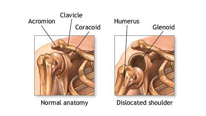 Поясничный радикулит лечение массажем